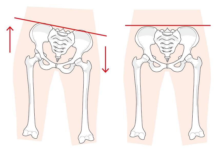 骨盤の歪みを修正